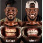 Peter Okoye a subi un processus de réparation et de blanchiment des dents.