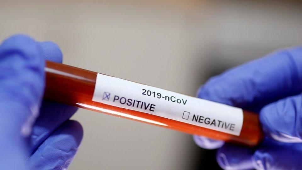 Coronavirus Découverte du deuxième cas de coronavirus en Tunisie