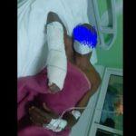 Tunisie - La Marsa: Deux ivoiriens agressés au couteau dans le quartier de Bahr Lazreg